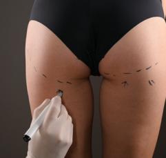 Cirurgia plástica no corpo