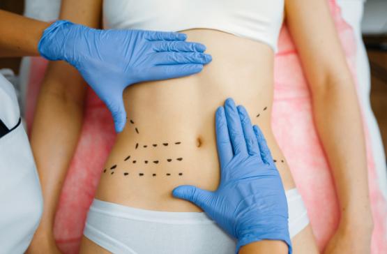 Procedimentos Cirurgicos